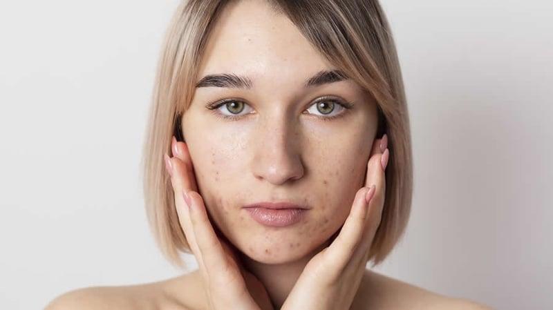 ¿Cómo eliminar el acné de la cara?