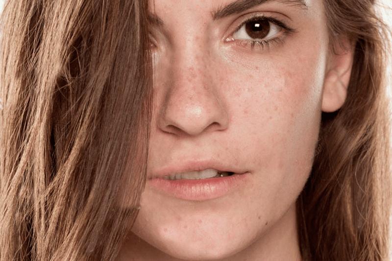 7 soluciones para las manchas en la piel que las empeora